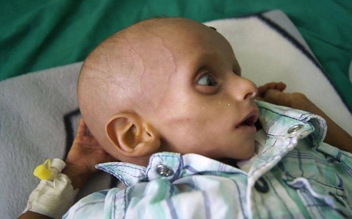 ninitest.com |    اثرات سو تغذیه بر سلامت و تکامل کودکان : .نی نی تست :امکان بررسی انلاین تکامل کودکان