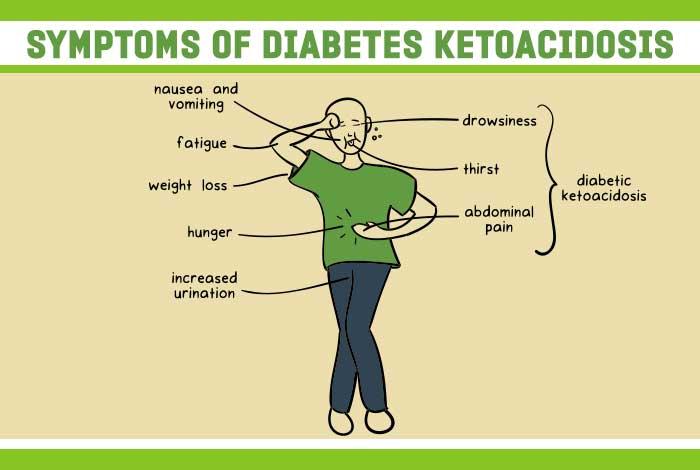 ninitest.com      دستورات درمان کتواسیدوز دیابتی